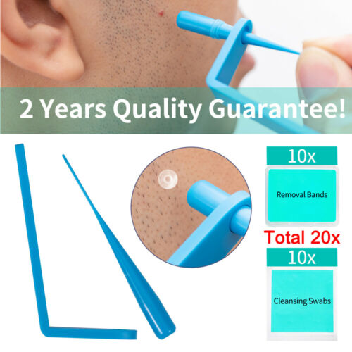 Micro Sets Skin Tag Remover Device Kit For Small To Medium Skin Tags Removal